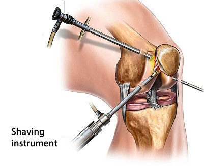 artroscopia de rodilla en veracruz