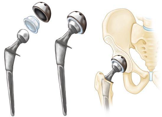 cirugia de cadera en veracruz