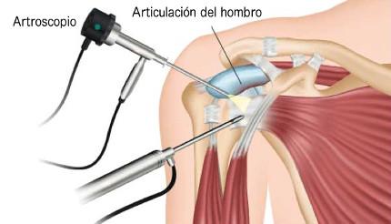 cirugia de hombro en veracruz